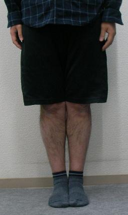 膝下O脚矯正後